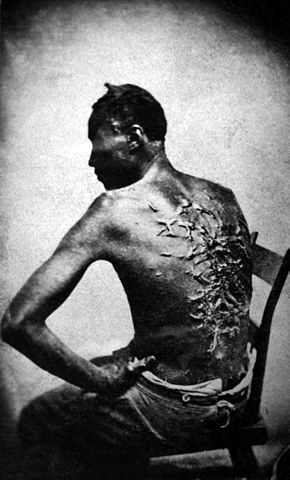 http://en.wikipedia.org/wiki/File:Cicatrices_de_flagellation_sur_un_esclave.jpg
